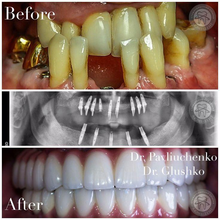 Получить обратно родные зубы при помощи зубной имплантации - теперь это абсолютно реально в клинике Люми-Дент!👍😀 Записывайтесь на бесплатную консультацию!☺️http://bit.ly/2kfPJyb https://www.lumident.kiev.ua/services/implantatsija-zubov