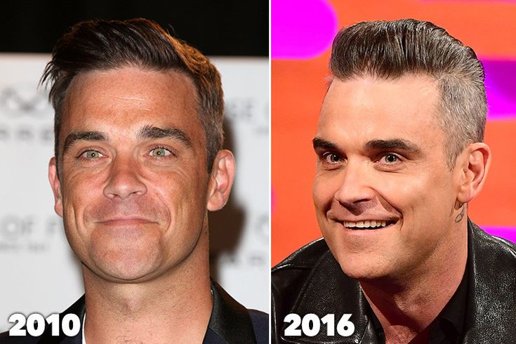 """ROBBIE Williams has revealed that he had had a number of cosmetic surgeries done, including fillers, Botox and chin reduction surgery – and joked that it has made him unable to """"move [h…"""