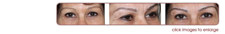 Hollywood Eyebrows – Eyebrow Specialist Melbourne, Permanent Eyebrows, Permanent Eyebrow Specialist, Eyebrow Tattooing Melbourne, Eyebrow shaping, Eyelash tinting, Hair Extensions, Permanent Makeup Melbourne