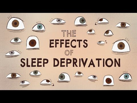List and descriptions of physical effects of sleep deprivation.