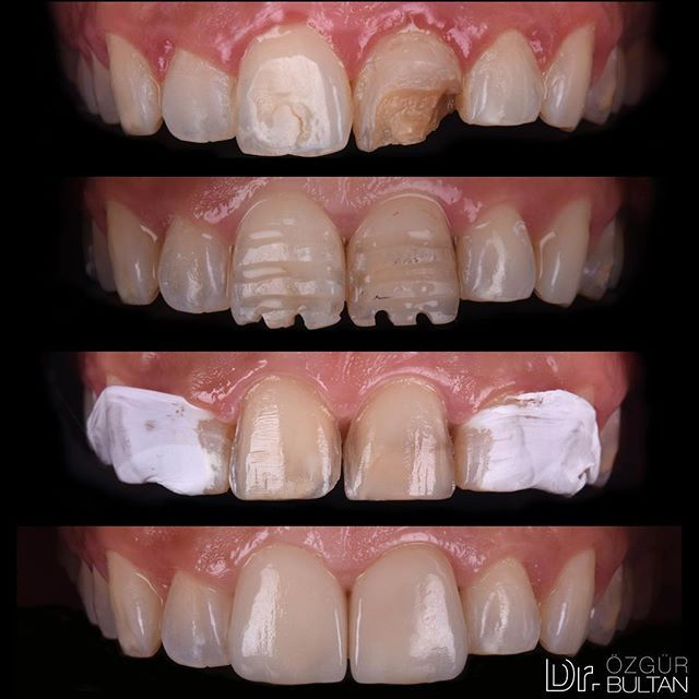 Restoration Of Central Incisors With Ips E Max Laminate Veneers Composite Build Up For Left Central Incisor P Esthetic Dentistry Dental Photography Dentistry
