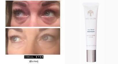 Fáradt ,karikás szem? Megoldást jelenthet ,szemkörnyékápoló krémünk. !! Azonnal és hosszú távon is hatékonyan csökkenti a szem alatti karikák megjelenését! Öregedésgátló hatóanyag-technológia emellett segít visszaadni a bőr feszességét és simaságát,