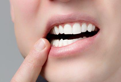 Comment soigner un aphte rapidement ? Les aphtes sont très douloureux et désagréables. Pour s'en débarrasser au plus vite, le remède de grand-mère est le bain de bouche à l'ortie.