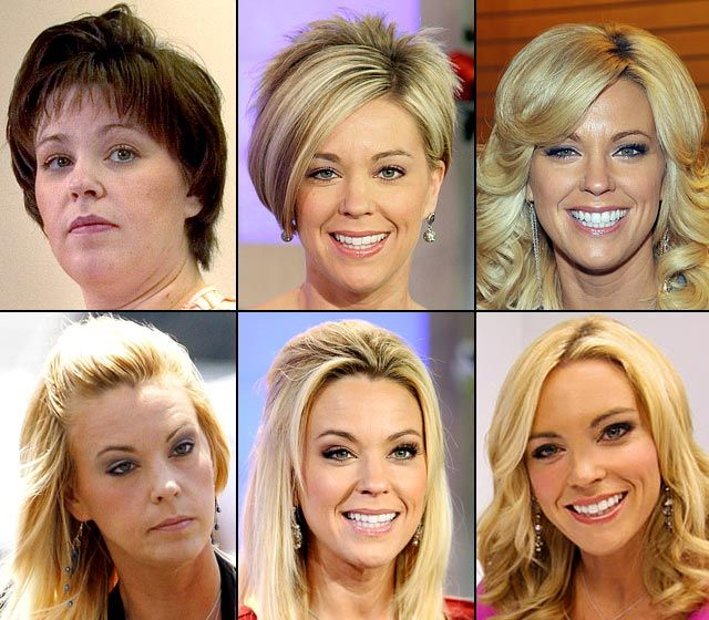 The Morphing of Kate Gosselin - Hard to believe the woman in the first picture is the same person in the last picture.