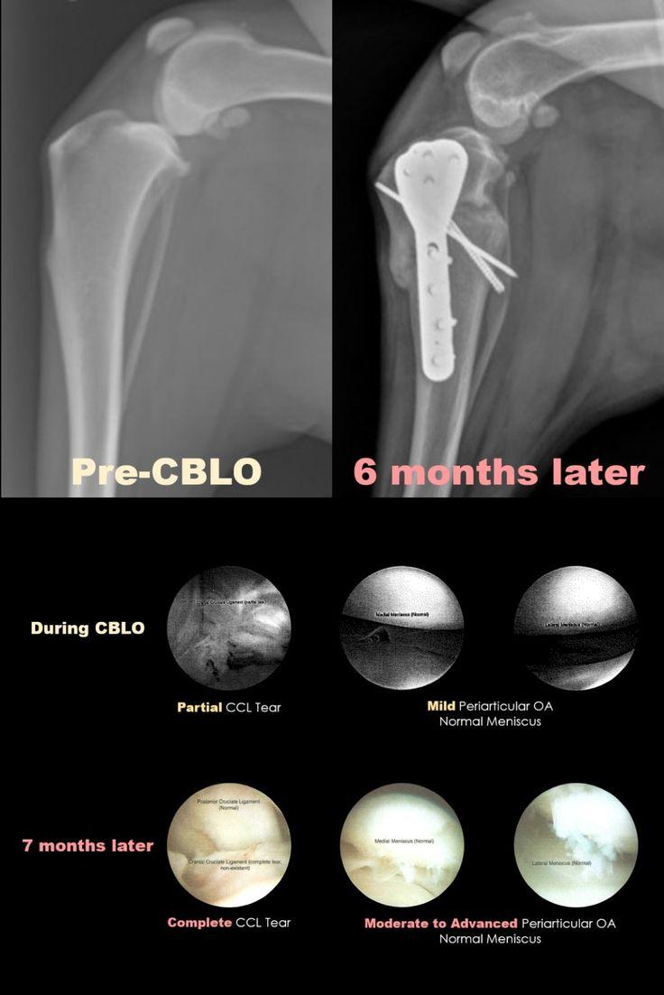 Early progression of cruciate tear and OA despite CBLO in