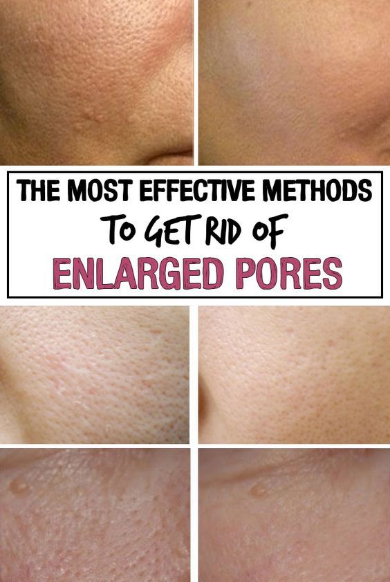How to Shrink Pores? – Beautypro Clubf