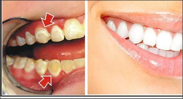 Má higiene oral pode trazer problemas desagradáveis ??e aumentar o risco de placa em seus dentes, embora algumas pessoas são geneticamente predispostas a ele. Placa é geralmente removido dos dentes com tratamentos odontológicos caros, mas você deve saber que você pode se livrar dele e whiten seus dentes ao mesmo tempo com uma mistura natural …