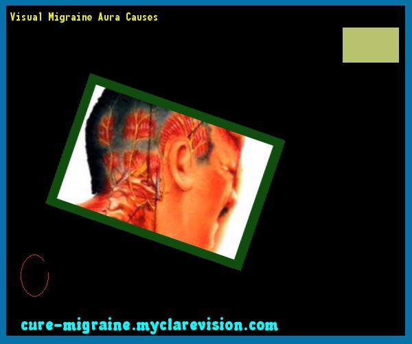 Visual Migraine Aura Causes 115711 - Cure Migraine