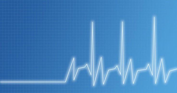 Maneiras simples de controlar um ritmo cardíaco acelerado. Taquicardia é outro nome para um ritmo cardíaco acelerado. Embora isso seja normal durante exercícios ou atividades físicas, um ritmo cardíaco acelerado prolongado tem potencial de ser perigoso. Com um ritmo acelerado prolongado, o coração não pode regular efetivamente a quantidade de sangue no corpo. Isso também impede que o coração distribua o ...