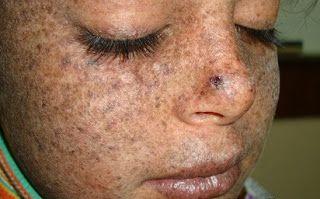 Penyebab Xeroderma Pigmentosum