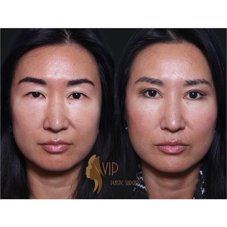 Before and after of a natural incisional Asian Upper Blepharoplasty. ✔️VIP Plastic Surgery - Dr. Andrew K. Choi