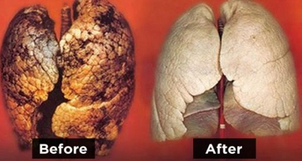 Clean Your Lungs Back to Life in Only Three Days! A Must-Do for Smokers!