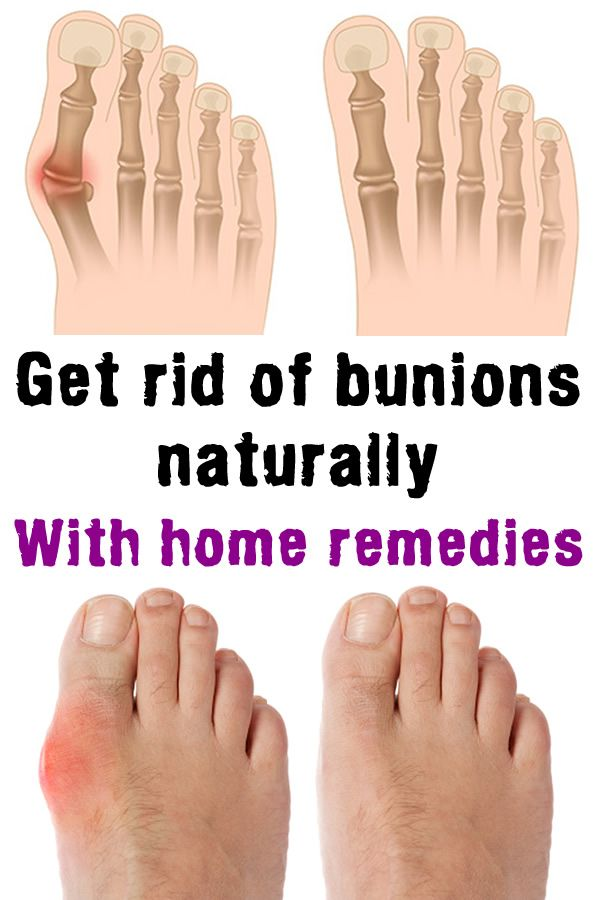 A bunion is an unnatural, bony hump that forms at the base of the big toe where it attaches to the foot. Often, the big toe deviates toward the other toes. When this occurs, the base of the big toe pushes outward on the first metatarsal bone – which is the bone directly behind the