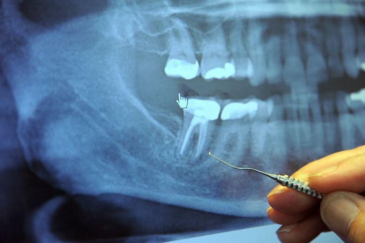 Dévitalisation des dents: 97% des malades atteints du cancer en phase terminale ont précédemment subi cette intervention dentaire...C'est un point de vue, mais à étudier tout de même.