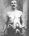 Jean-Jacques Libbera. Born in Rome in 1884 the Libberas toured with Barnum in 1907. Jacques was a parasitic body living within Jean's body. Jacques had arms, legs, hands and feet. X-rays indicated a rudimentary head was embedded inside Jean's body. Jean was married and fathered four normal offspring.