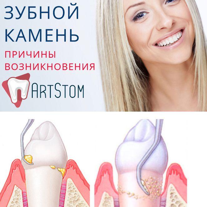 Причины возникновения зубного камня ☝  Зубной камень – отвердевший налет на поверхности зубов. Состоит он из остатков пищи, бактерий, железа, кальция и отмерших клеток. Сомнительный коктейль, не правда ли? Рекомендуем не оставлять его без внимания и сразу же обращаться к врачу. И, конечно, уделять достаточное время профилактике.  Что служит причиной появления зубного камня? • Нерегулярная или неправильная чистка зубов. • Использование плохих щеток и паст. • Преобладание мягкой пищи в…