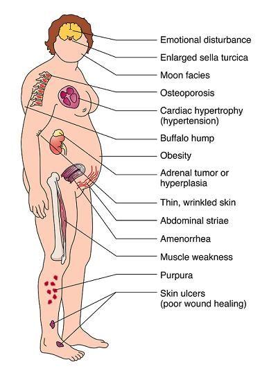Cushing Syndrome Nursing Management - Nursing Care Plans • Nurseslabs