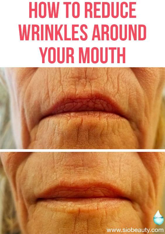 Lip Lines: The 7 Best Treatment Options For Wrinkles Around Your Mouth