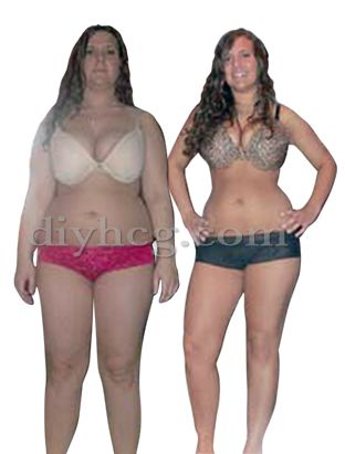 transformations weight loss hcg diet