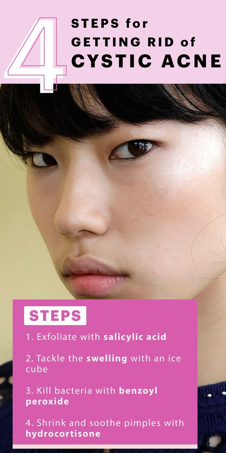 how to get rid of coming pimples