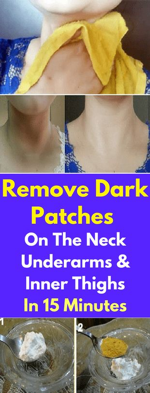 Dark skin spots or patches are a common issue which affects many people and even though it's not a medical problem per say it still very unattractive and everyone who has it tries their best to fix this condition. They usually appear on the neck, under the arms and on the inner thighs and can …