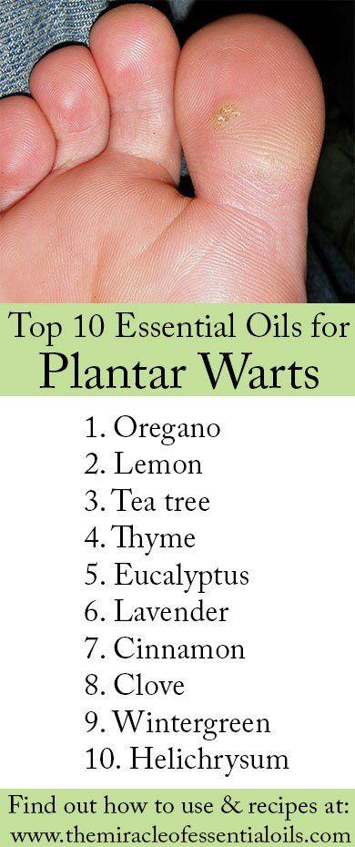 essential oils for plantar warts