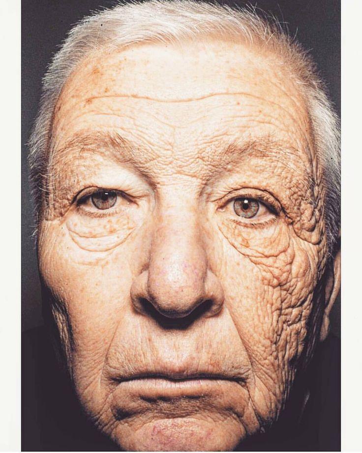 ��На фото 69-летний американский дальнобойщик, который на протяжении 29 лет совершал рейсы на своем грузовике. Левая сторона лица чаще всего находилась на солнце, а правая в тени. Влияние солнца на кожу очевидно. ���� ��Заботьтесь о себе, ежедневный уход и защита от солнца - это важно! ☝Сходите к косметологу и проконсультируйтесь по уходу за кожей.  Тем, кто еще не выбрал своего специалиста, может обратиться к нам.�� У нас есть косметологический кабинет и с нами работает замечательный…