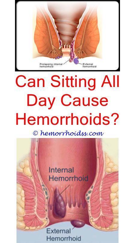 Hemorrhoids in the vagina