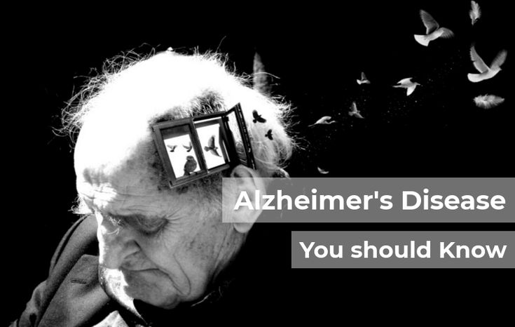 Do you know Alzheimer's Disease ? No!