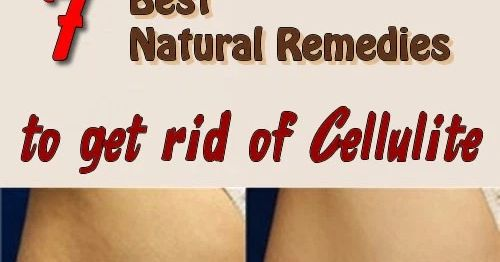 Cellulite! This word makes both men and women tremble. Also, it appears to both skinny and voluptuous women. The weight is not a sign. Thi...