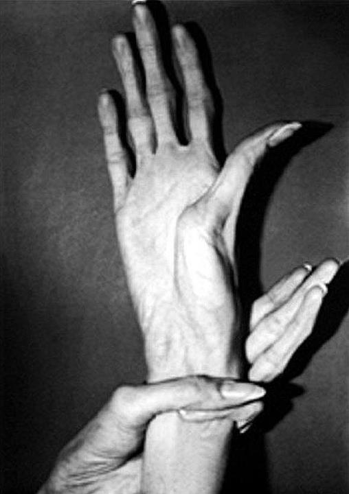 "Arachnodactyly (""spider fingers"") or achromachia, is a condition in which the fingers are abnormally long and slender in comparison to the palm of the hand. It can be present at birth or develop in later life. This feature can occur on its own, with no underlying health problems. However, it can also be associated with certain medical conditions which include Marfan syndrome, Ehlers Danlos Syndrome, and homocystinuria.  *sorry, image not photoshopped."