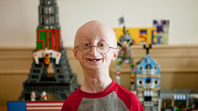 Progeria This genetic disorder is as rare as it is severe. The classic form of the disease, called Hutchinson-Gilford Progeria, causes accelerated aging.
