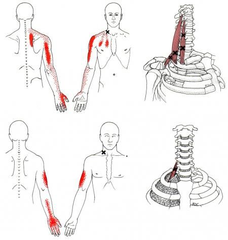 scalene  sometimes scalenes  referred pain diagram