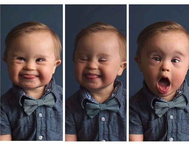 Beautiful Baby Boy with Down Syndrome