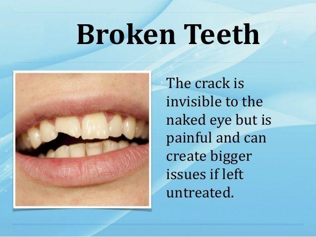 #Dentist #BrokenTeeth #DentalProblems