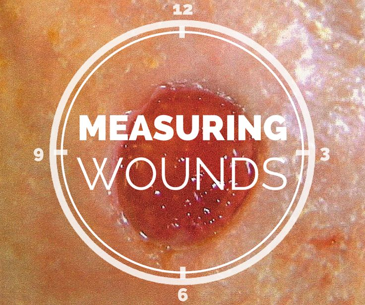 12 best wound care images on Pinterest Medical, Nursing notes - wound ostomy continence nurse sample resume