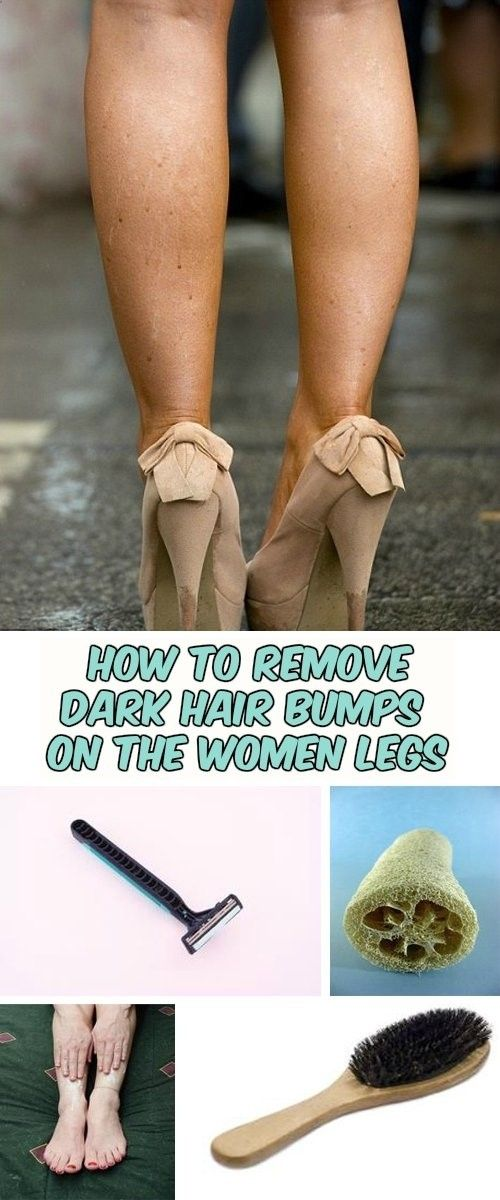 how to get rid of pores on legs after shaving