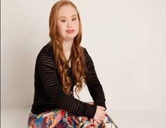"""La disabilità è negli occhi di chi guarda.: Madeline Stuart modella per scelta: """"posare aiuter..."""