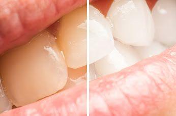 Choć zabieg #wybielania   #zębów #metodą #BEYOND  należy do bezpiecznych, istnieją pewne przeciwwskazania do jego wykonania. Są nimi: ciąża i karmienie piersią; młody wiek – poniżej 16. roku życia; stany zapalne dziąseł – w tym paradontoza; odwapnienie szkliwa wynikłe z nadużywania fluorków; noszenie aparatu ortodontycznego; krótki okres po chirurgicznym zabiegu stomatologicznym.