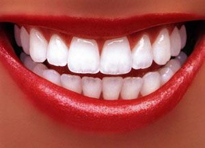 Bleach For Teeth Whitening Check more at http://www.healthyandsmooth.com/teeth-whitening/bleach-for-teeth-whitening/