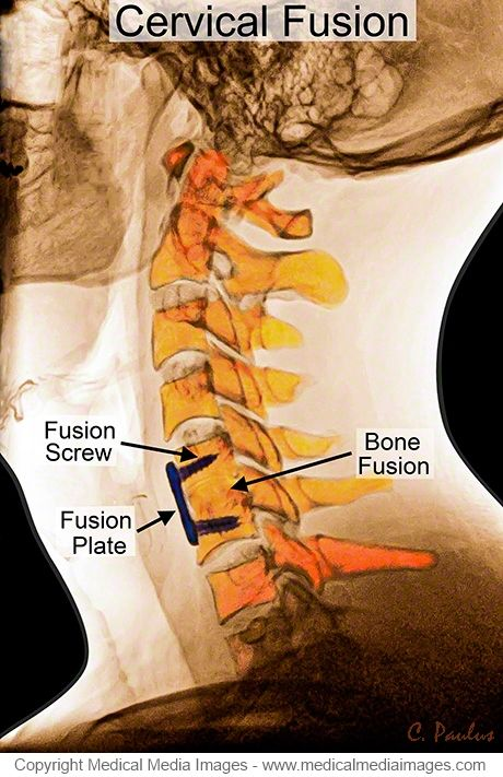 Color X-Ray Medical Image of an Anterior Cervical Fusion with Annotations. Ideal for Websites and Publications. http://www.medicalmediaimages.com/cervical-spine-color-x-ray-image-anterior-cervical-spine-fusion/310