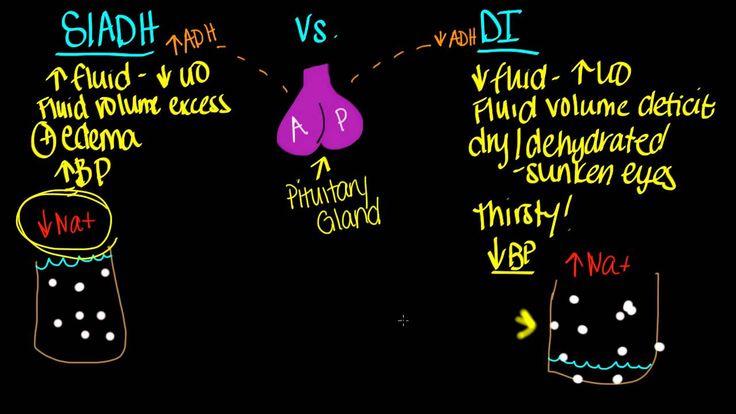 SIADH vs. DI