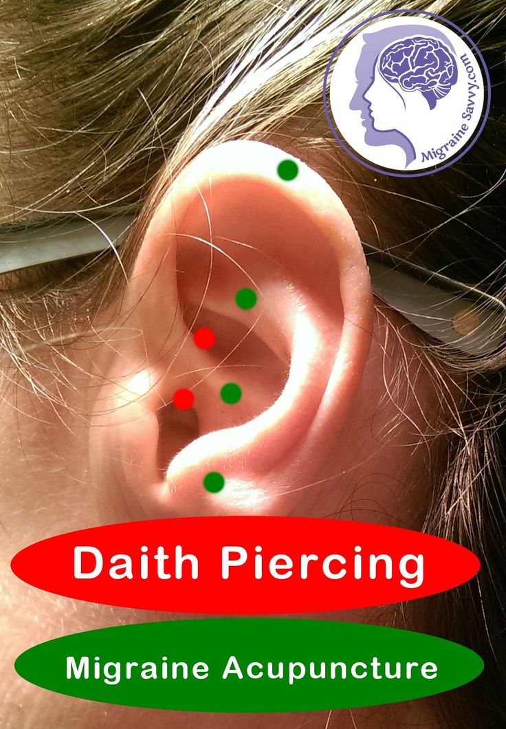 I have been reading about this daith piercing for migraines 'treatment', if you can call it that, for ages now. I have been putting it off because I think it's a load of bollocks. IMO!