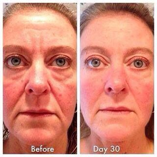 Great 30 day #Nerium results! You have nothing to lose but looking better:-)  Lourdes3.Nerium.com