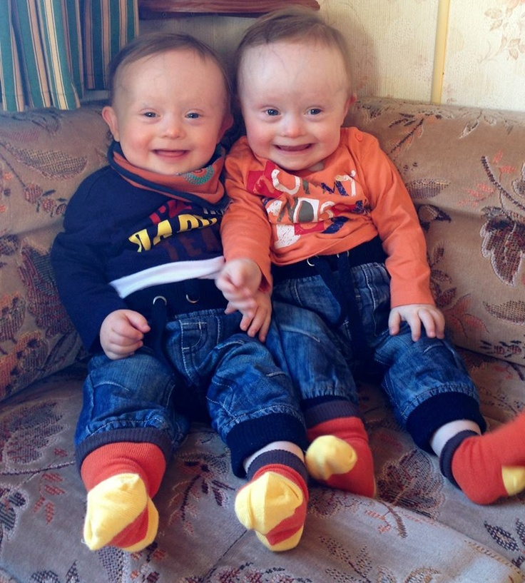 BANKS-LOWE TWINS:  Identical TWIN Boys Arthur (left) and Alfie (right) have Down Syndrome with learning and health issues.  Arthur has been accepted to receive extra help and support by the Disability Living Allowance BUT Alfie has been told no! - very hard to understand why two different answers - keep fighting Mum!