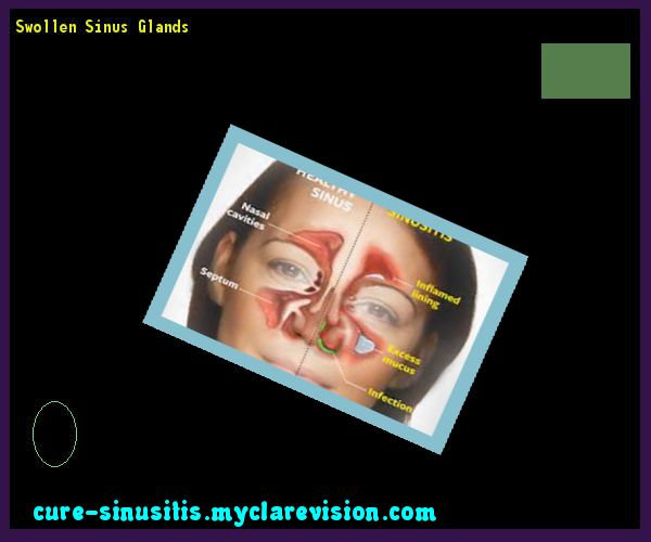 Swollen Sinus Glands 094305 - Cure Sinusitis
