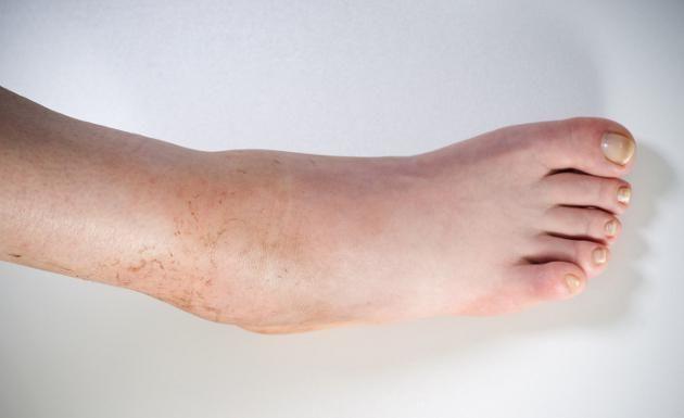 ¿Por qué se hinchan los pies? La causa más común es la insuficiencia venosa, pero la hinchazón podría tener su origen en problemas renales o cardíacos Una e