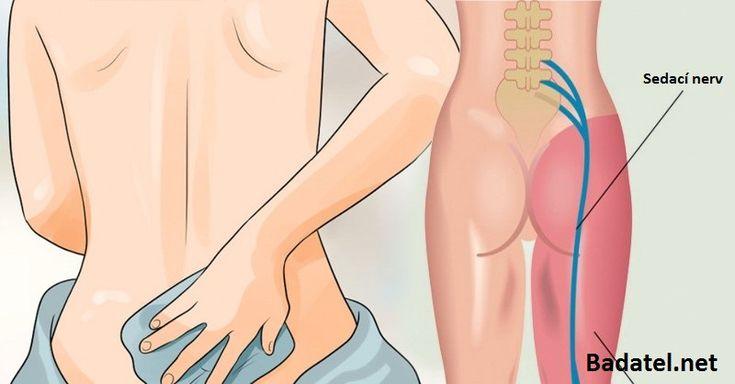 Trpíte na zápal sedacieho nervu (ischias)? Vyskúšajte tieto účinné prírodné spôsoby, ako sa okamžite zbavíte bolesti a zmiernite zápal.