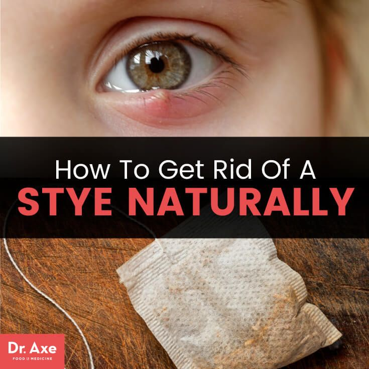 How to get rid of a stye naturally - Dr. Axe- good to know