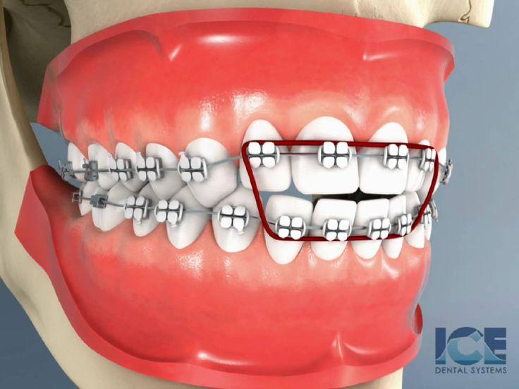 Anterior Openbite Braces Dental braces, Orthodontic